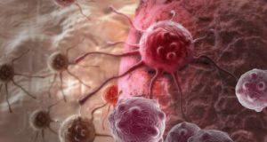 Найдена альтернатива химиотерапии в лечении рака легких