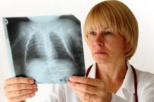Диагностика и лечение сухого кашля