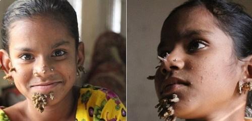 Маленькая девочка из Бангладеш страдает от страшного заболевания