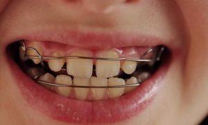 Пластинки для зубов для красивой улыбки